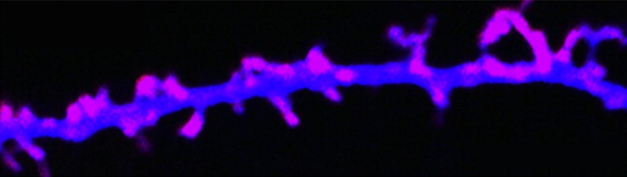 kandealneuron2