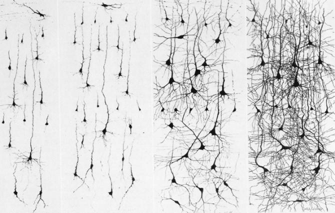 neuroplasticity-02